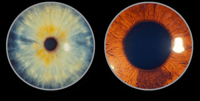 iris-galeria1-luis-fernando-mejia-oftalmologo