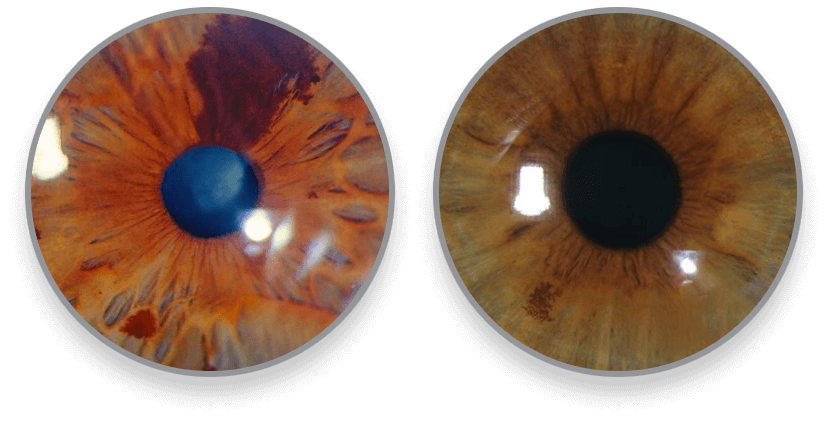 iris-galeria3-luis-fernando-mejia-oftalmologo